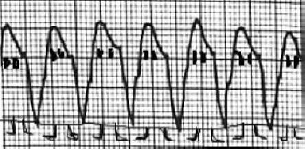 "EKG tracing of ventricular tachycardia ""ghosts"